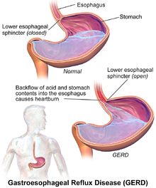 Inflammed oesophagus due to acid reflux causing chest pain