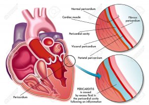 Chest pain due to inflammation of the pericardium
