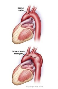 Picture of Aortic Anuerysm