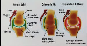 Picture showing difference between Rheumatoid and Osteoarthritis